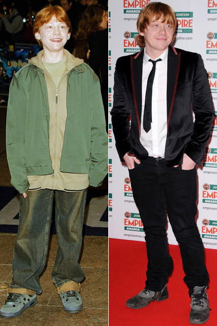 Rupert Grint - Harry Potter Stars: Then and Now - Harry Potter - Harry Potter and the Deathly Hallows - Deathly Hallows - Deathly Hallows pics - Celebrity - Marie Claire