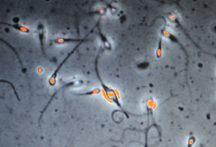 A new test that checks a man's sperm count will soon be available in the UK