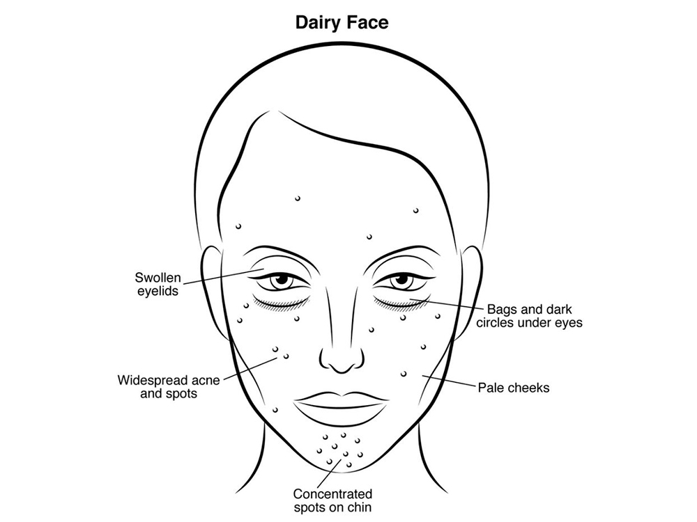 sugar face  what eating a heavy sugar diet is doing to your skin