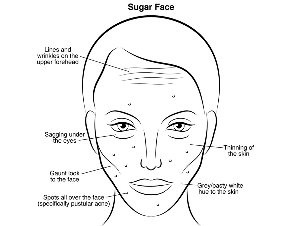 Image result for sugar face