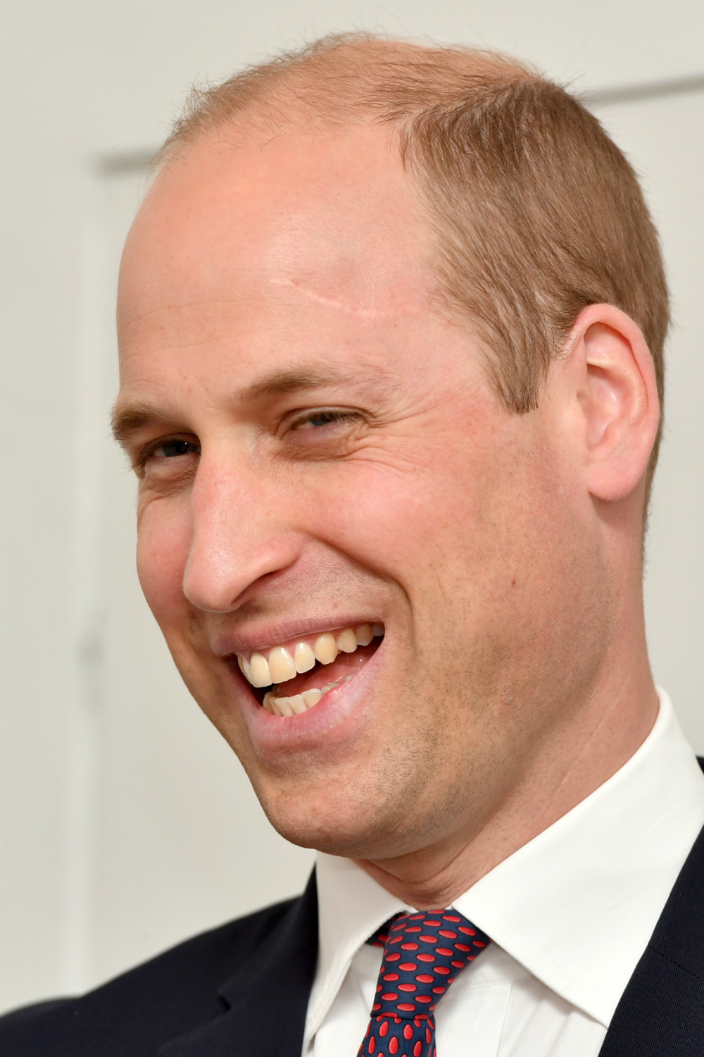 This Is The Origin Of Prince Williams Harry Potter Scar