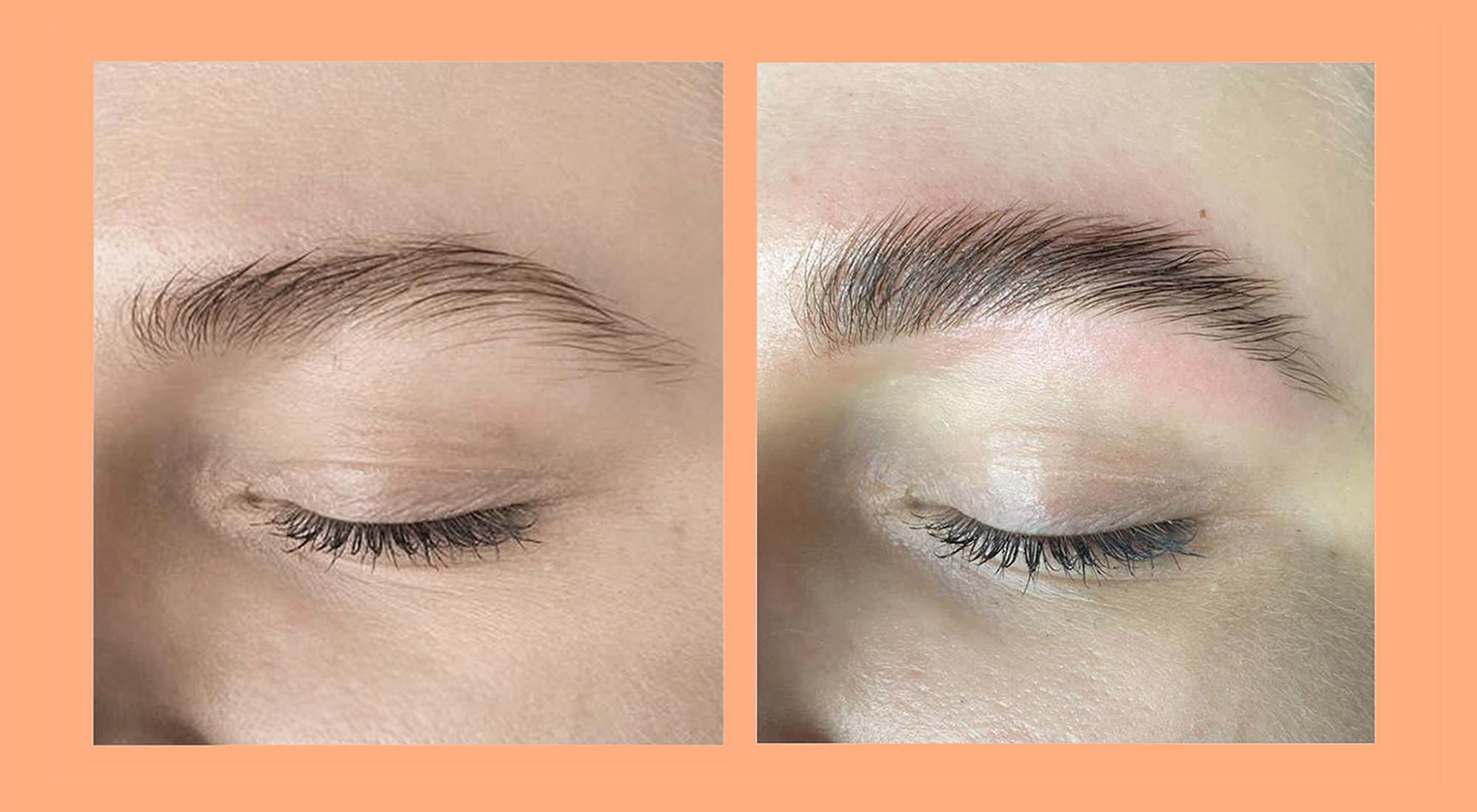 Brow lamination – what is it, and how does it work?
