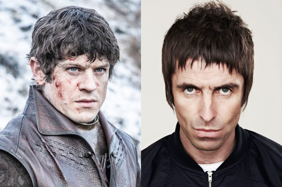 Is Liam Gallagher Anything Like Ramsay Bolton